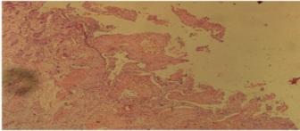 orgian of rt hypocondrium region