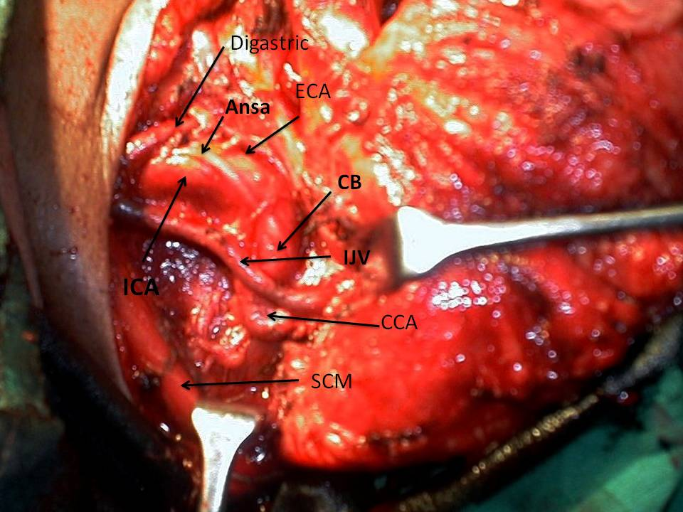 Clinical Significance of Tortuosity of The Carotid Artery and Higher ...