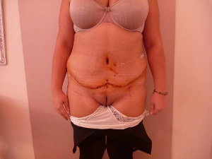Benefits of Abdominoplasty Associated with the Repair of