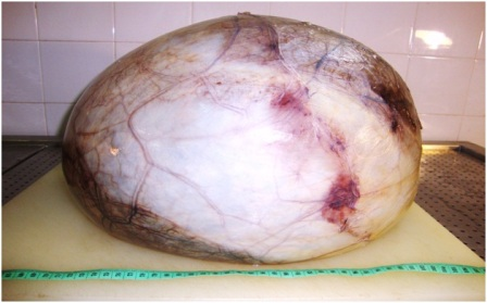 Giant Right Renal Cyst Mimicking Intra-abdominal Malignancy: A ...